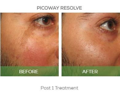 Picoway Resolve \u2013 Cade Clinique
